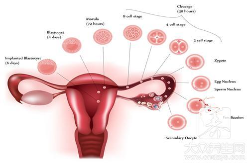 卵巢发炎怎么办