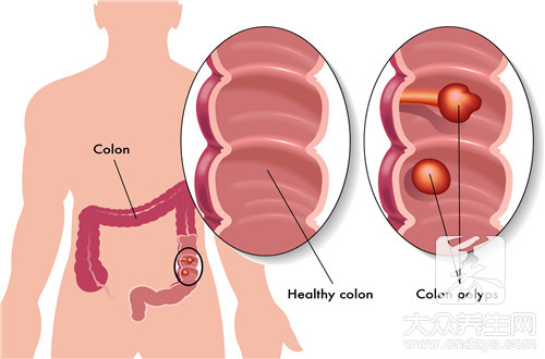 直肠炎灌肠要用什么药-第3张