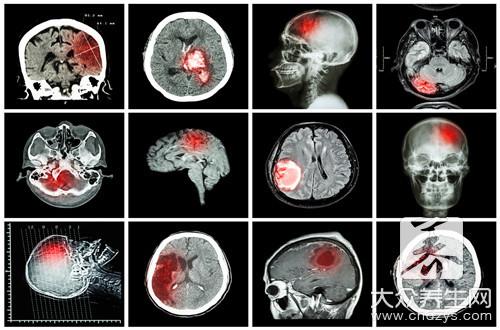 脑干出血能做手术吗-第3张
