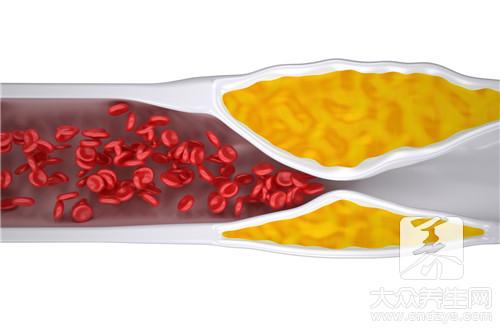 在家怎么测血脂