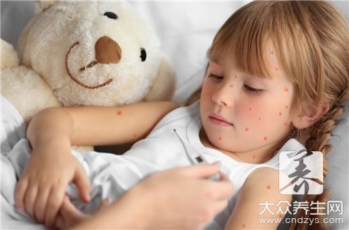 水痘不痒正常吗?