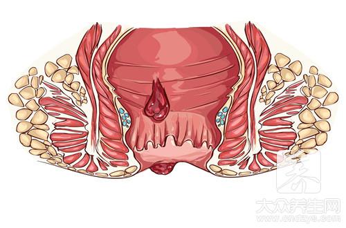 为什么肛门会有小肉瘤
