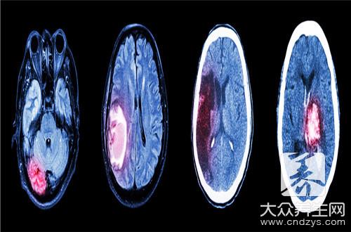 脑部囊肿是什么病严重吗-